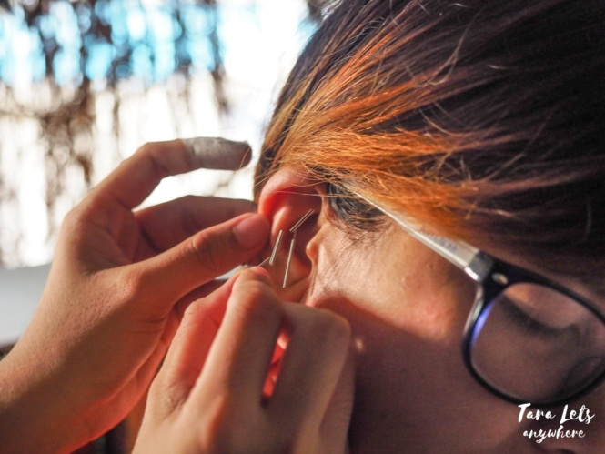 Tree of Life Wellness Center - ear acupuncture